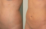 liposuccion-laser-abdomen2