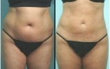 liposuccion-laser-abdomen3