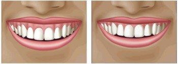 Sonrisa gingival. dental