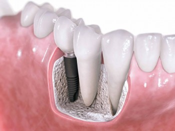 complicaciones del implante dental