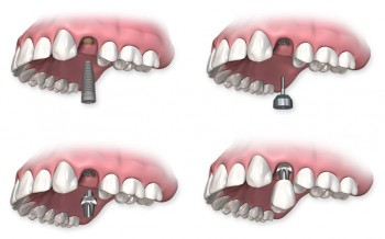 proceso del implante dental