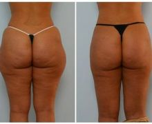 bodyjet-liposuccion