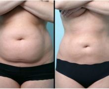 liposuccion-laser-abdomen