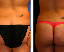 smartlipo-cartucheras